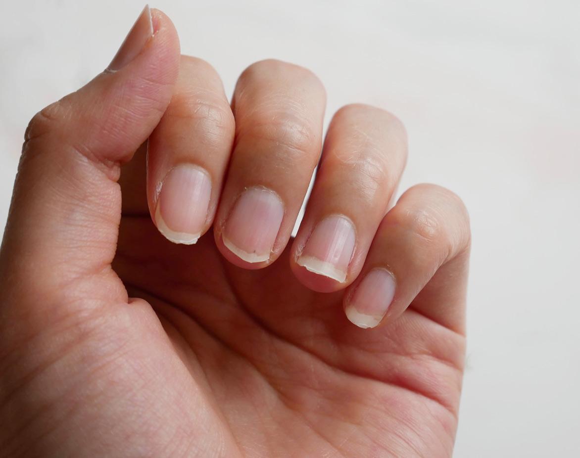 ¿Por qué se me rompen las uñas?